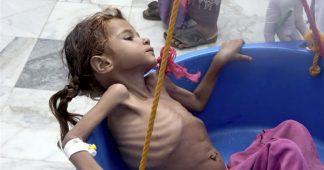 Yemen to face worst humanitarian crisis of 2019: UN