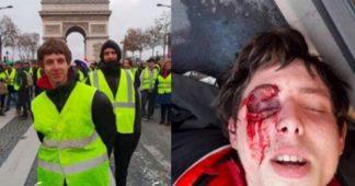 """""""Je m'appelle Franck, j'ai 20 ans et j'ai été défiguré par les forces de l'ordre"""". Appel à soutien"""