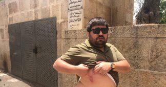 Israeli police beat Palestinian photographers in Jerusalem amid 'escalation' in attacks on journalists